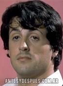Sylvester Stallone, 1977
