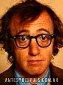 Woody Allen,