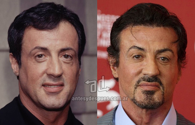 sylvester stallone before surgery