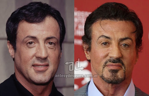 sylvester stallone antes y despues de la cirugia plastica
