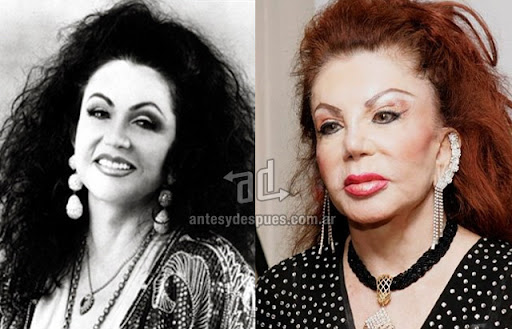 jackie stallone antes y despues de la cirugia plastica