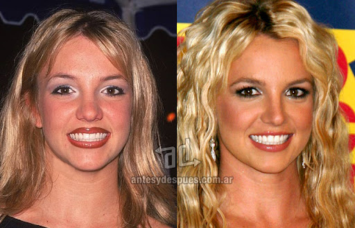 britney spears antes y despues de la cirugia plastica