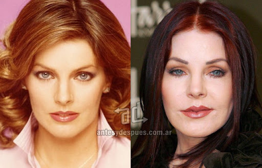 priscilla presley antes y despues de la cirugia plastica