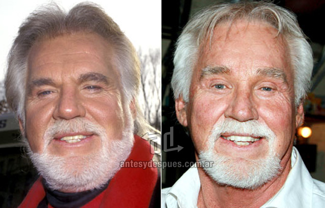 kenny rogers before surgery
