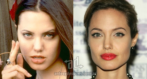 angelina jolie antes y despues de la cirugia plastica