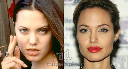 angelina jolie antes y despues de la cirugia plastica