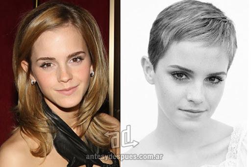 Antes y despues de Emma Watson - Corte de pelo, nuevo look