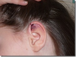Kayleah's ear