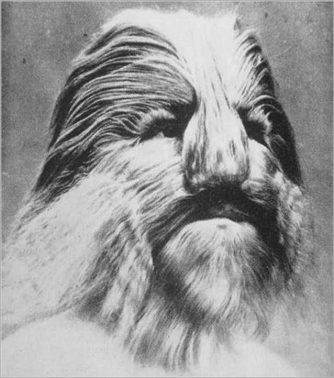 Stephan Bibrowski – Lionel The Lion-Faced Man