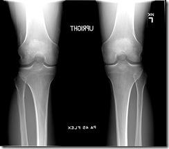 my knee
