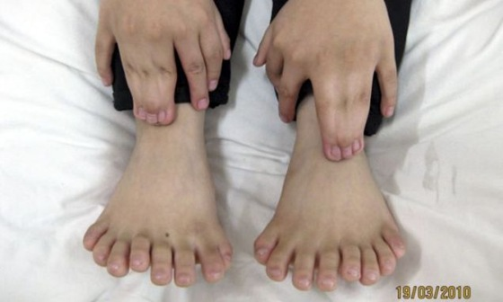 Boy With Record 31 Fingers and Toes