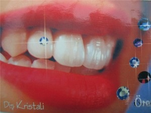 tooth-jewels