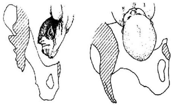 Lateral view of monkey and human passage through birth canal.