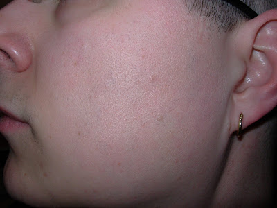 Left side, after 30 treatments.