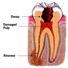 root-canal-abscess
