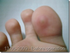 how to get rid of hammer toe corns
