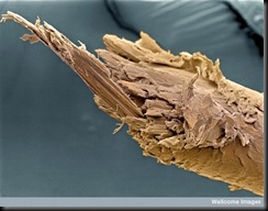 Split human hair