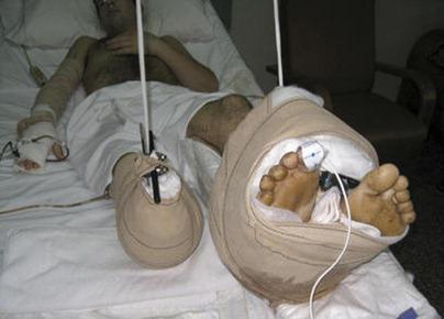 cirugia dos pies
