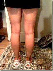 legs pic 1