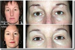 donat-blepharoplasty-eyelid-surgery1