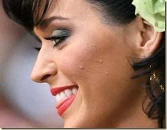 mujer-guapa-con-acne