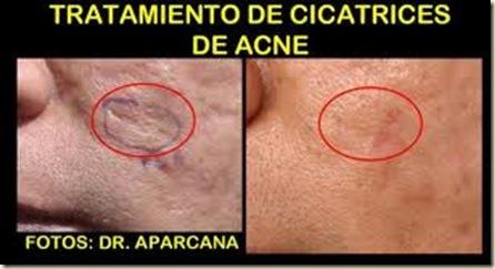 cicatrices2