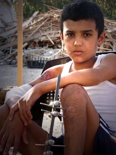 injured child in Gaza