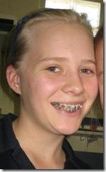 braces on day 1