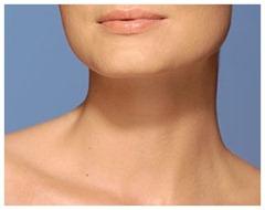 neck-woman-300x236