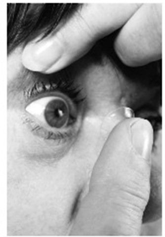 Contact lenses are placed directly on the surface of the eye. (Digital Stock)