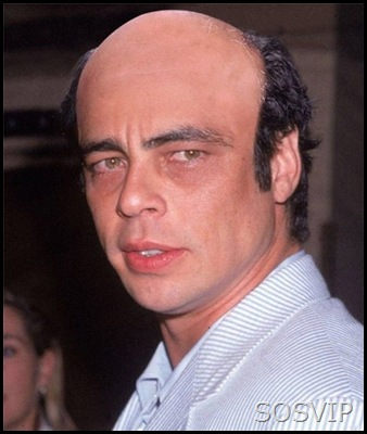 bald-celebrities-funny-8