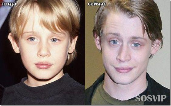 Celebridades antes e depois - Celebs before after.jpg (4)