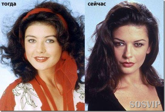 Celebridades antes e depois - Celebs before after.jpg (9)