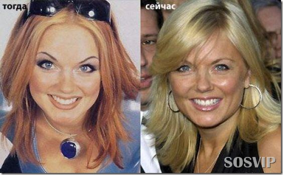Celebridades antes e depois - Celebs before after.jpg (22)