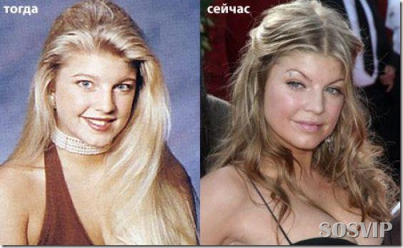 Celebridades antes e depois - Celebs before after.jpg (18)