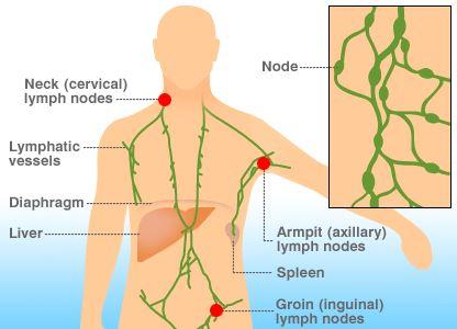 淋巴癌是什么病,什么是淋巴癌,淋巴癌的早期症状,lymphoma