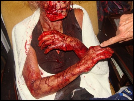 Eksteen Theresa Jan 25 2010 Stilfontein panga attack victim serious in hospital pic Elria van Schalkwyk Facebook
