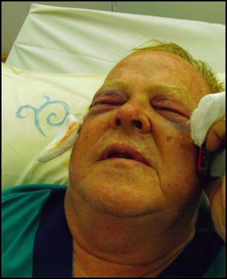Pretorius Marius top SA eye surgeon attackers tried to gouge out his eyes Vereeniging 20091206
