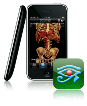 osirix_iphone_detail.png