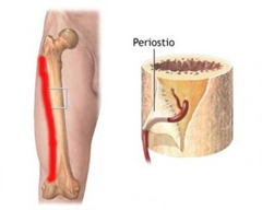 periostitis tibial en padel