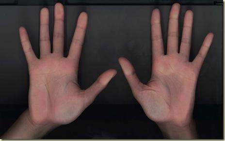 FCCO mãos