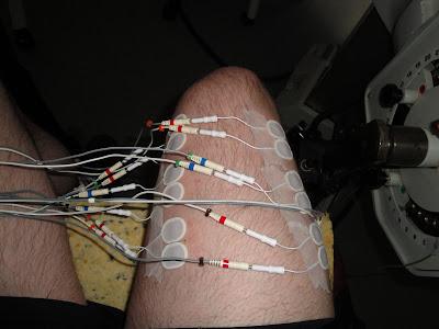 Mi pobre pierna