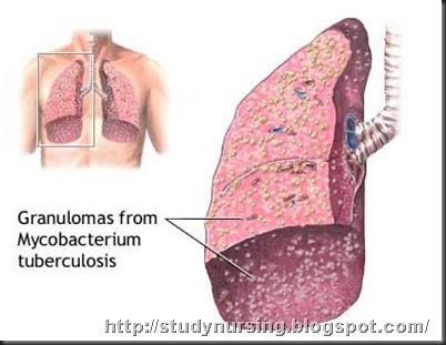 miliary-tuberculosis