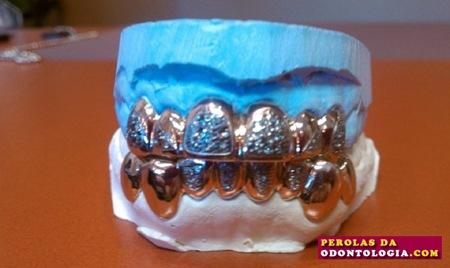 dentadura preciosa