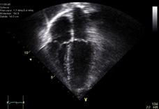 Echocardiogram_4chambers