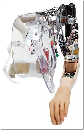Artificial_Arm