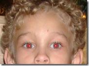 red eye 1