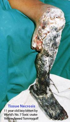 Tissue Necrosis Snakebite