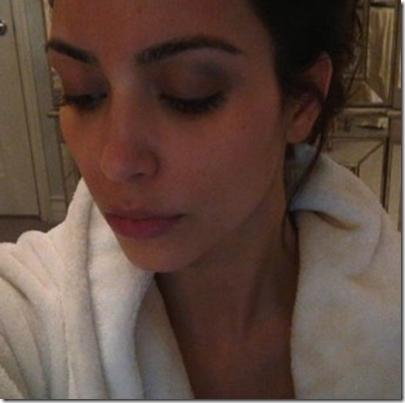 Kim Kardashian Black Eye