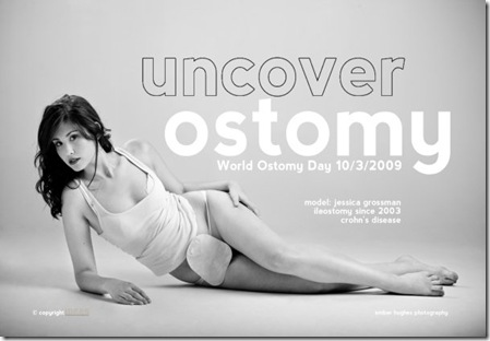 uncover ostomy